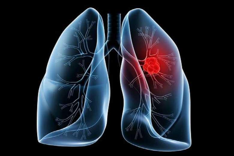 چگونه سرطان ریه و کرونا را از یکدیگر تشخیص دهیم؟